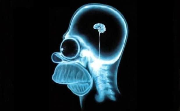 Bill Bonner: Investissement passif: Les investisseurs n'ont plus rien dans le crâne