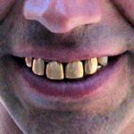 Charles Sannat: «Les voleurs lui arrachent ses dents en or en pleine rue ! Aïe !»